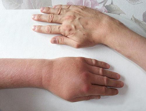 Schwellung der Hand nach einem Wespenstich