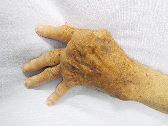 Rheumatoide Arthritis an einer Hand