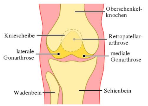 Lokalisation von Kniegelenkarthrosen (Gonarthrosen) (rechtes Kniegelenk, von vorne)