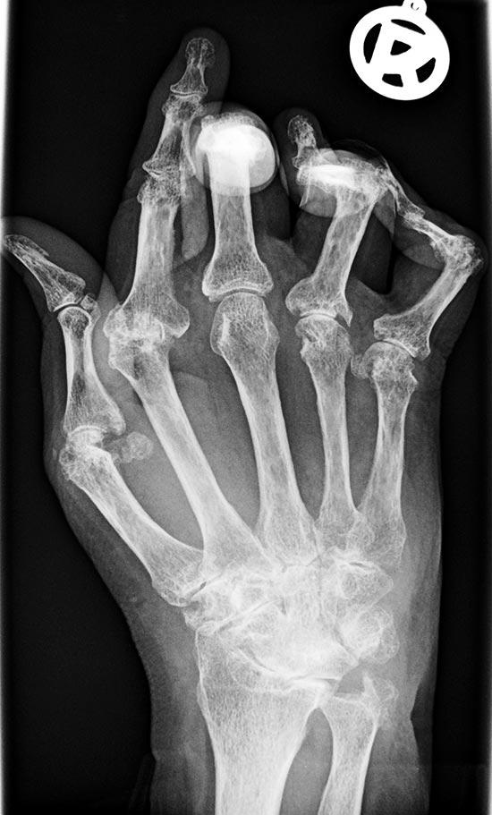Rheumatoide Arthritis (Typisches Röntgenbild einer betroffenen Hand)
