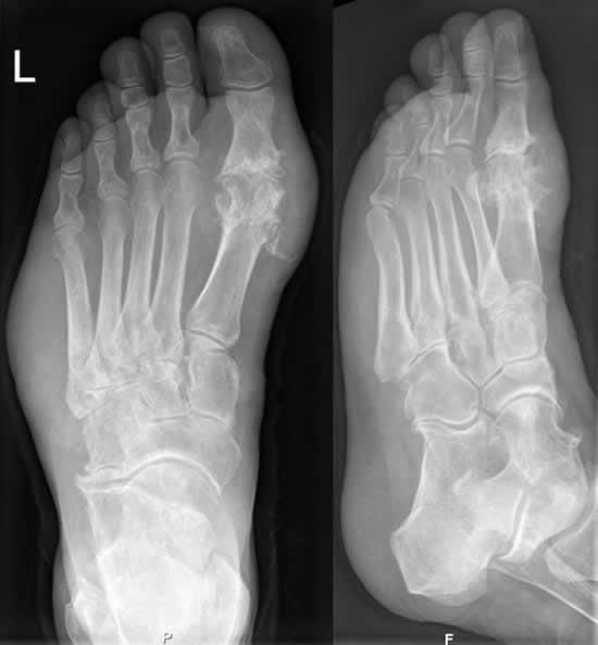 Gicht im Röntgenbild des Fußes. Typische (Haupt-)Lokalisation am Großzehengrundgelenk. Beachte auch die Weichteilschwellung lateral am Fußrand.