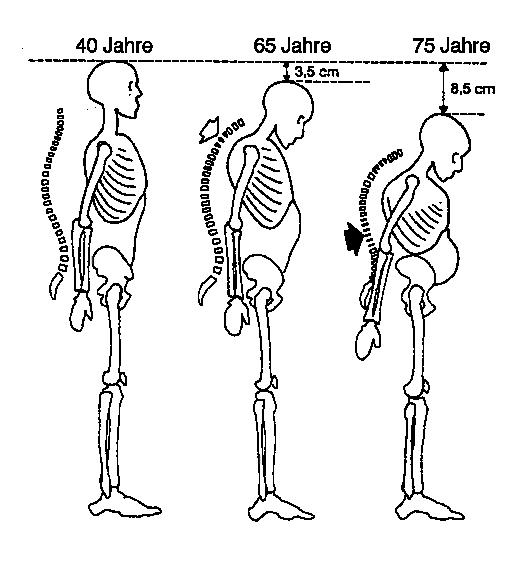 Schema des Körperhöhenverlusts bei Osteoporose