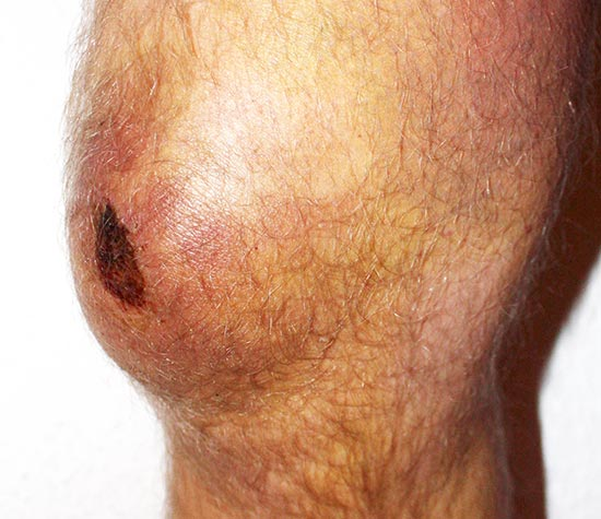 Schleimbeutelentzündung - Bursitis Praepatellaris 10 Tage nach Sturz