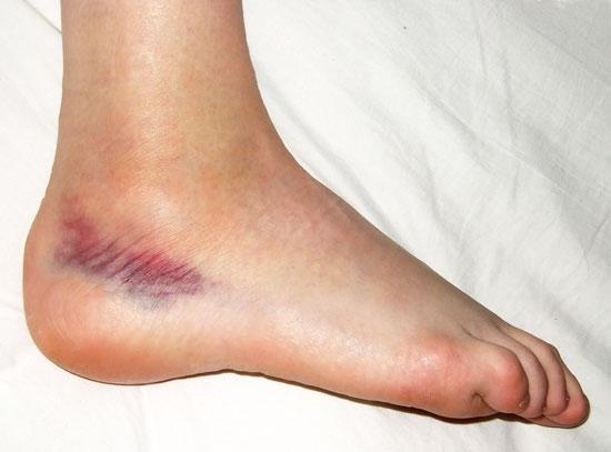 Verstauchter Fuß (Verstauchter Fuß (Verstauchungen und Prellungen)