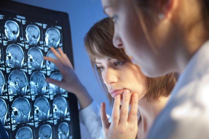 Foto von Ärzten, die die Röntgenaufnahmen eines Schlaganfall-Patienten kontrollieren.