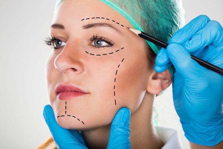 Foto von schönheitschirugischen Schnittführungs-Linien für eine Lidstraffung auf dem Gesicht einer Frau