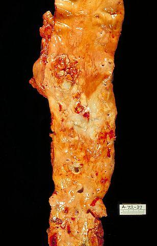 Eröffnete Aorta mit arteriosklerotischen Veränderungen